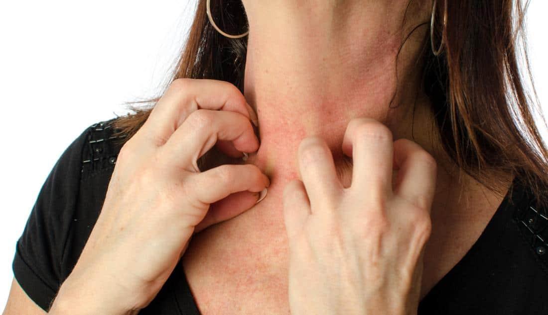 Mujer rascando su cuello