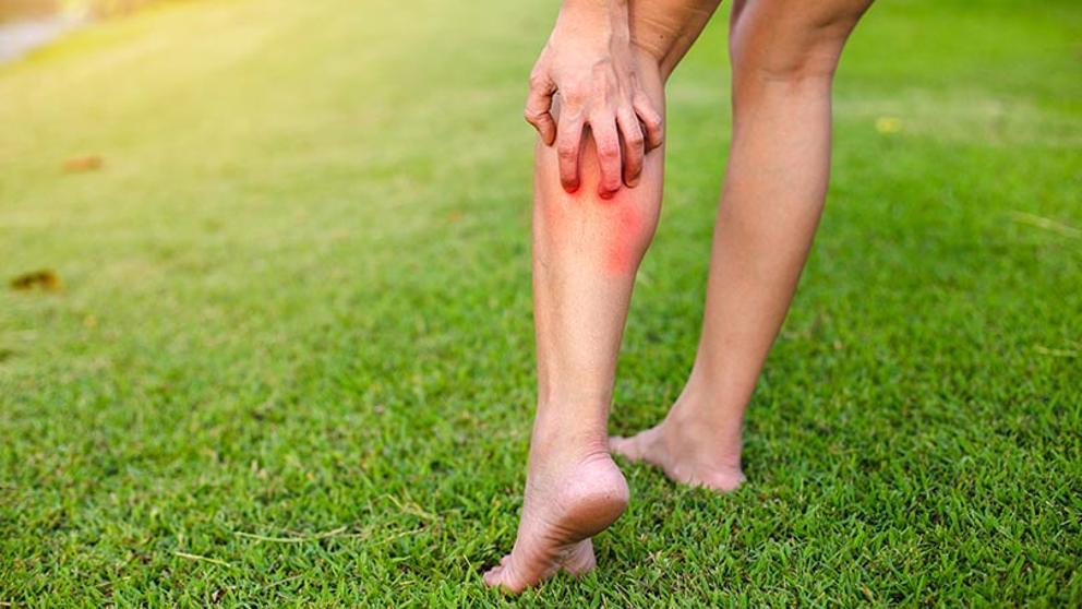 Cómo atacar las picaduras de mosquitos