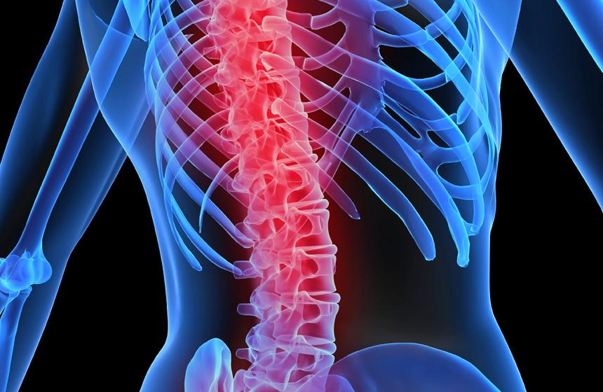 Columna con osteoporosis