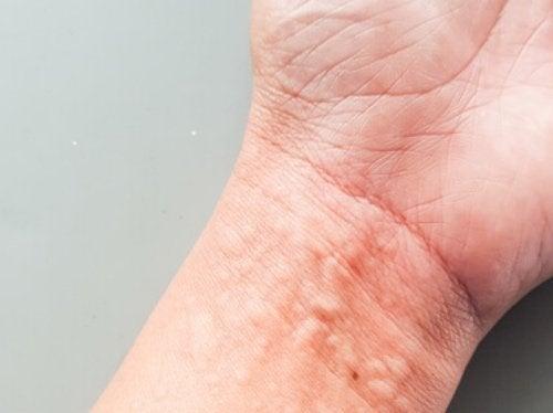 mano con urticaria