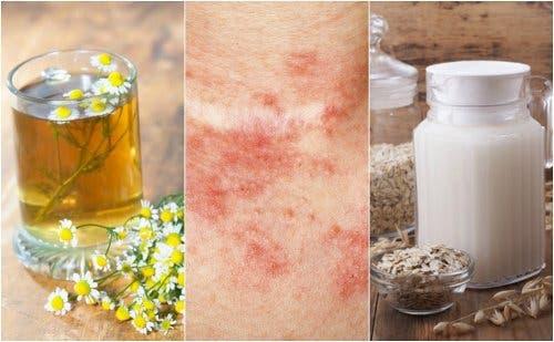 Remedios para piel con acné