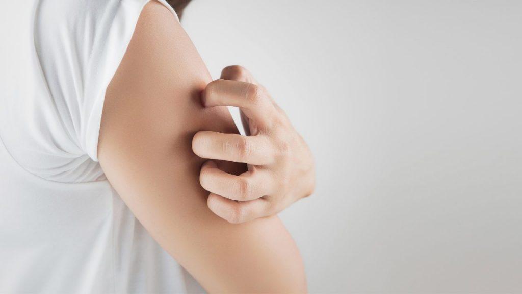 Consejos para tratar la dermatitis en la piel